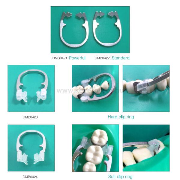 Szekcionált matricafeszítő gyűrűk és alkatrészek - több típusban